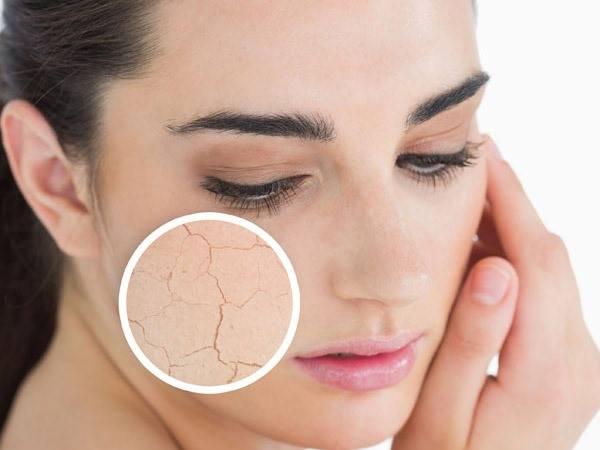 prodotti naturali pelle secca